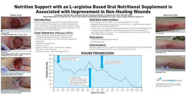 Nutrition Support with an L-arginine Based Oral Nutritional Supplement is Associated with Improvement in Non-Healing Wounds