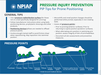 NPIAP – PIP Tips for Prone Positioning
